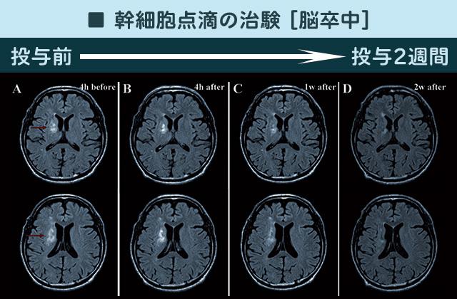 脳梗塞の縮小