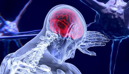 脳梗塞・脳神経
