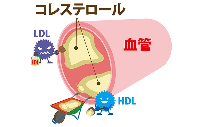 動脈硬化-LDLコレステロール